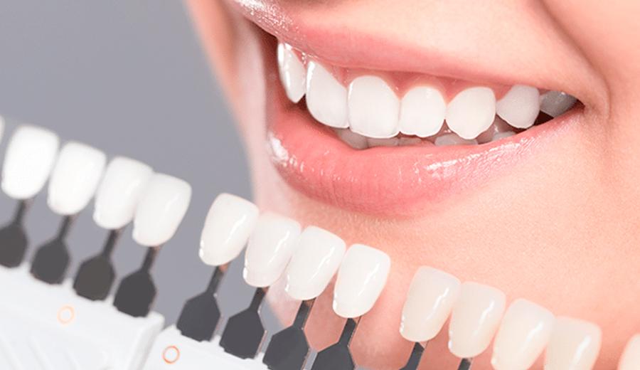 Blanqueamiento dental en Talavera de la Reina Clinica Ocampo