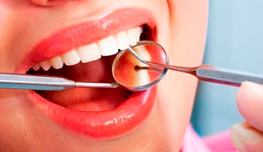 que es una endodoncia Dentista en Talavera de la Reina
