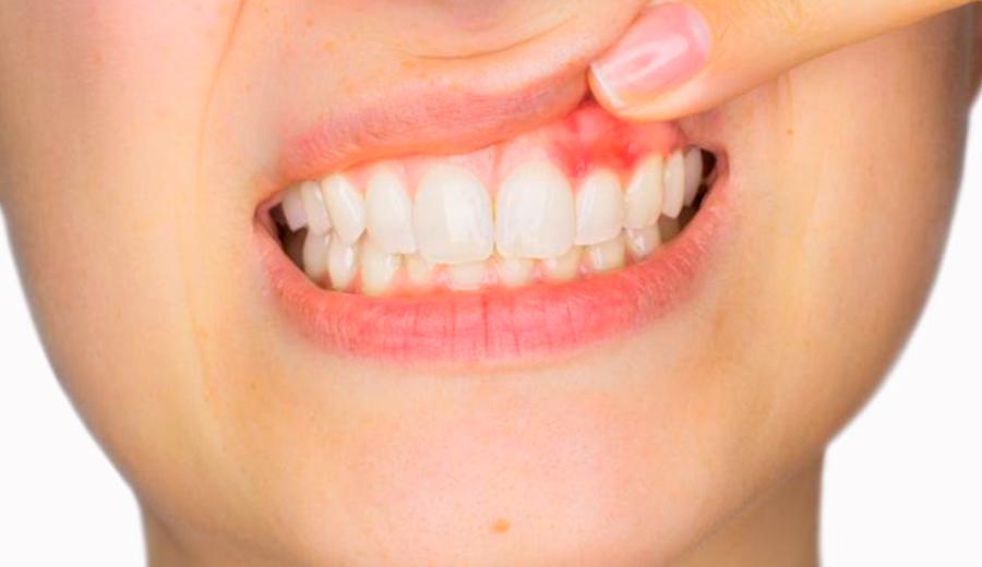 como curar la gingivitis en Talavera de la Reina