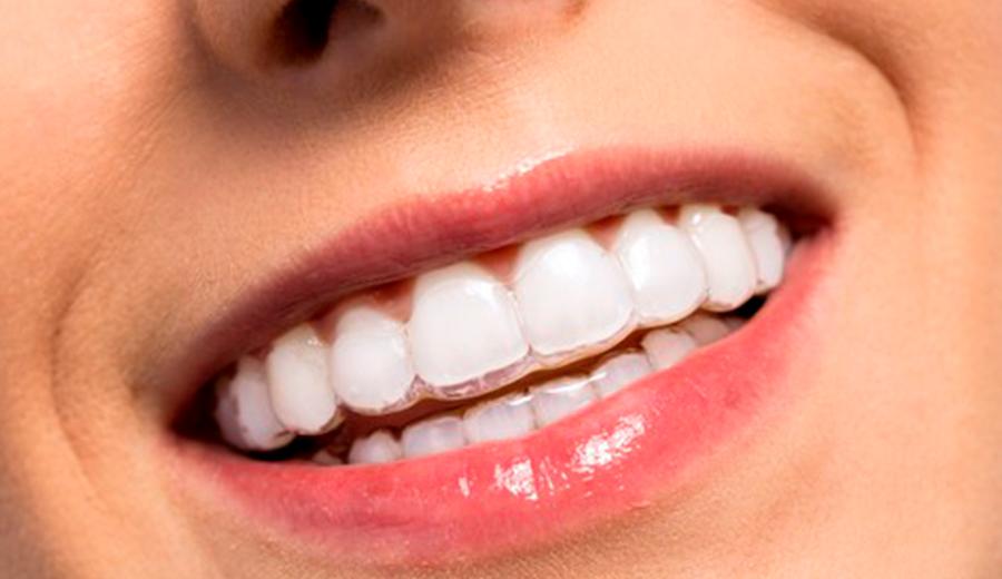Ortodoncia invisalign en Talavera de la Reina Clinica Ocampo