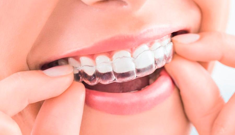 Ortodoncia invisalign en Talavera de la Reina