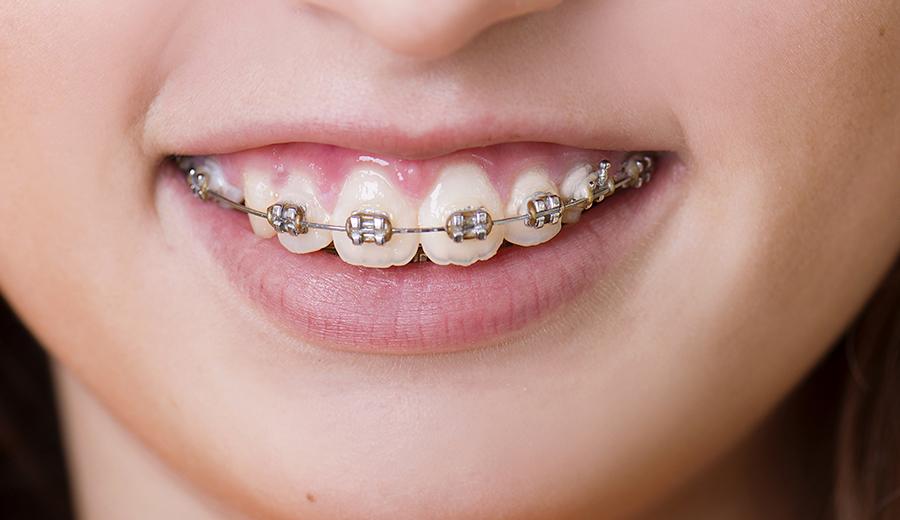 Ortodoncia infantil de calidad en Talavera de la Reina Clinica Ocampo