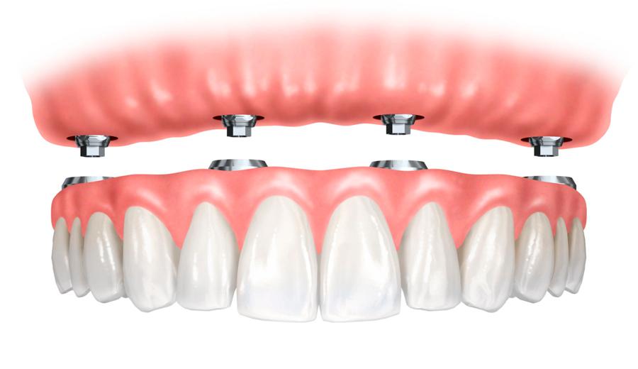 Clinica dental Ocampo Protesis dentales en Talavera de la Reina