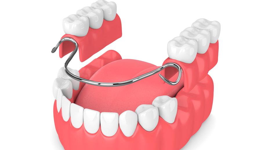 Clínica dental Ocampo Prótesis removibles en Talavera de la Reina